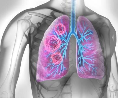 Uzman isim uyardı! Akciğer kanseri riskini 30 kat arttırıyor