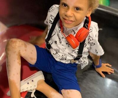 Nadir deri hastalığı olan çocuk, uluslararası model oldu