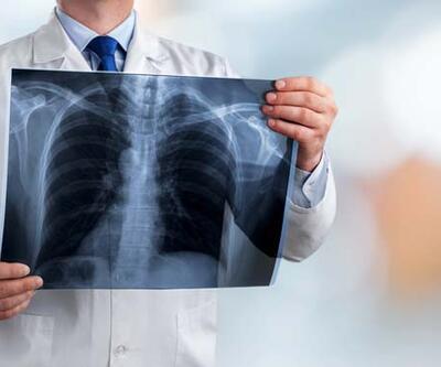 Akciğer kanserinde tedavi başarısı artıyor