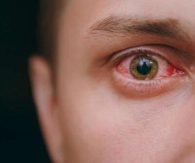Adenovirüs nedir, belirtileri nelerdir?