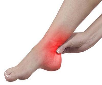En sık görülen ayak sorunu topuk ağrısı