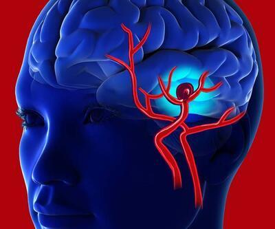 Beyinde böyle hasara yol açıyor! Covid-19'un alevlendirdiği nörolojik hastalıklar