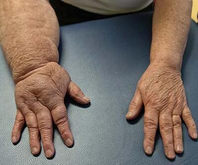 Kollarda ve bacaklarda oluşan şişlikleri ihmal etmeyin