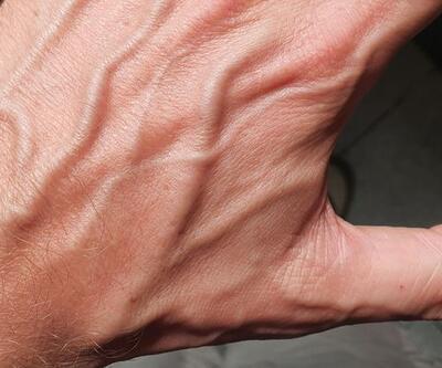 El üstündeki damar ağrısı neden olur?