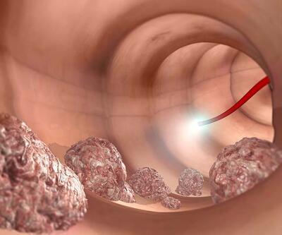 Kolon kanseri hakkında doğru bilinen 6 yanlış