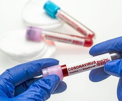 SON DAKİKA HABERİ: Bugünkü vaka sayısı açıklandı! 16 Mart 2021 koronavirüs tablosu SON DURUM! Türkiye'de bugün kaç kişi öldü?