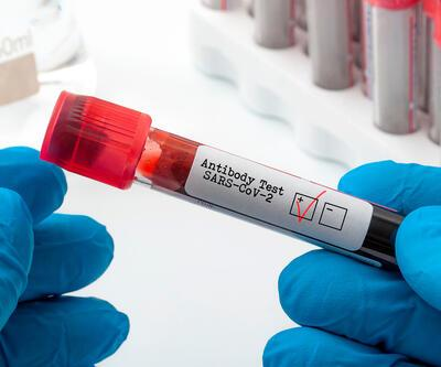 Uzman isimden antikor açıklaması: T hücreleri koronavirüsle savaşıyor