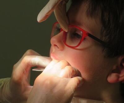 Çocuklarda 'parmak emme' alışkanlığı kalıcı sorunlara yol açabilir