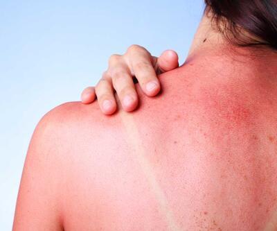 Güneş yanığı sandığınız rahatsızlık alerji çıkabilir