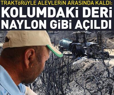 Yangında son anda kurtulan ve traktörü yanan çiftçi: Aldığım nefes alev gibiydi