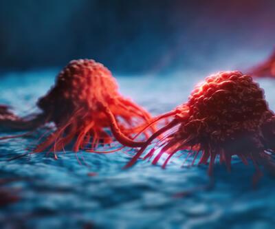 """""""Sessiz katil"""" olarak biliniyor! Yumurtalık kanserinin 10 kritik belirtisi"""