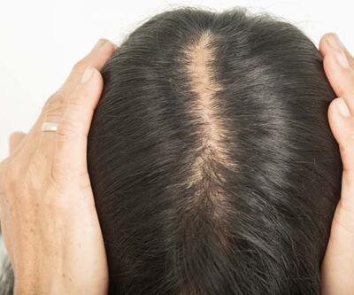 Stres yapmak saçları döküyor