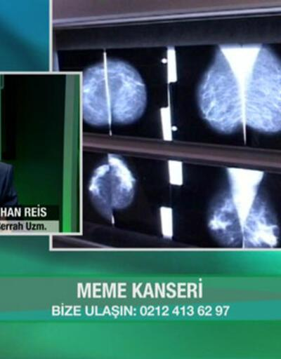 Mamografide lenf nodu hastalık belirtisi mi?