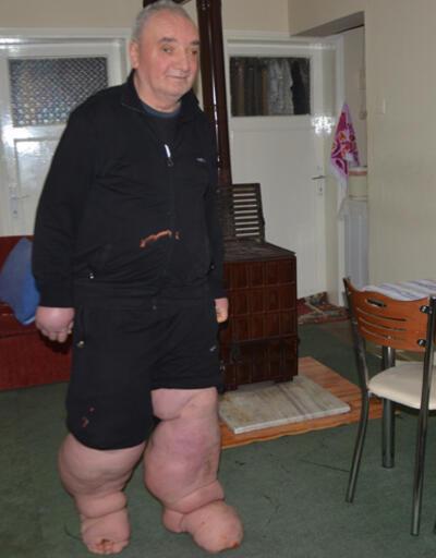 Fil hastalığına yakalandı: 130 kilo oldu