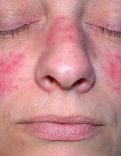Lupus, tedavi edilmezse ölümcül olabilir