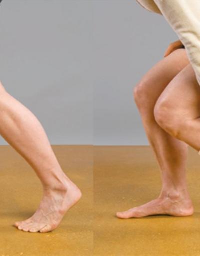 Bacak damar tıkanıklığı tedavisi