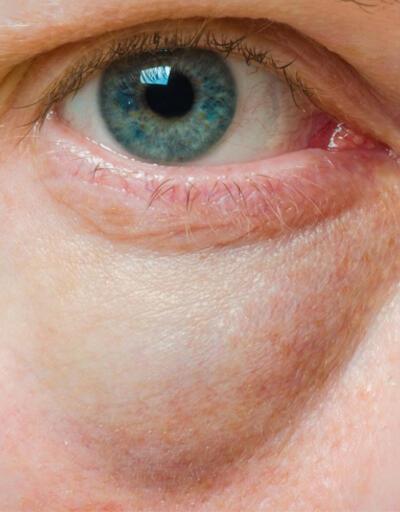 Göz altı morlukları kabusunuz olmasın