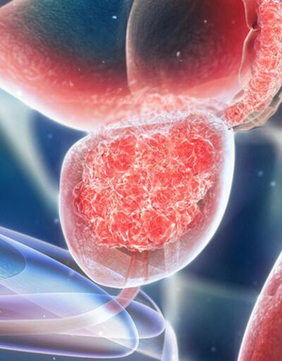 Prostat kanserinin aşamaları nelerdir?