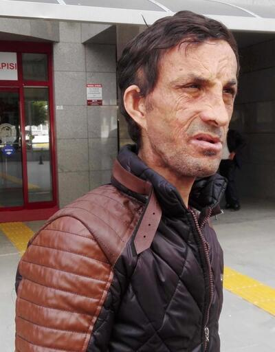 Yüz nakli yapılan Uğur Acar cinayetle suçlanıyor
