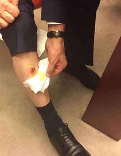 AK Partili Balta: Bacağımda iki diş izi var