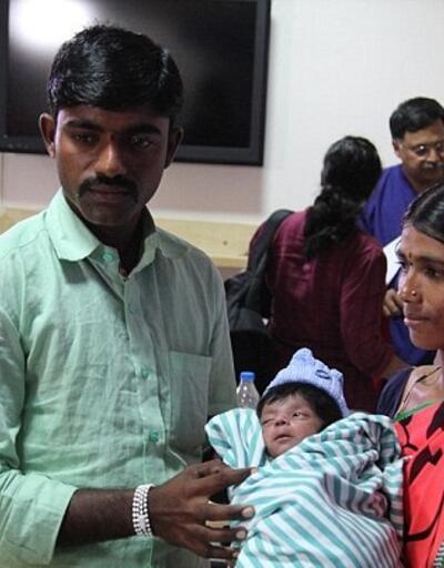 Hindistan'da dört ayaklı doğan bebek ameliyat edildi