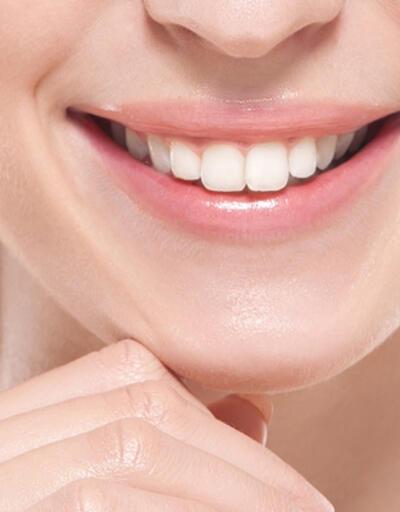 Mükemmel bir gülüşe sahip olmak için nelere dikkat etmeliyiz?
