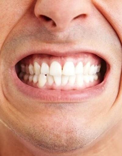 Diş sıkma tedavisinde botoks enjeksiyonu