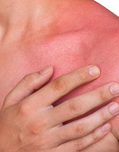 Güneş yanığı ve cilt lekelerini doğal yollarla tedavi edin