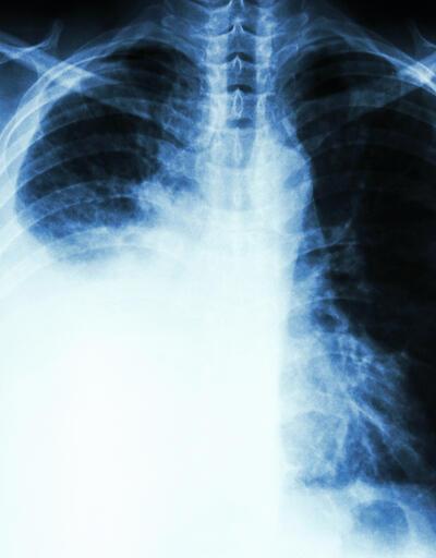Sigara içenlerin yanında olmak akciğer kanseri riskini artırıyor