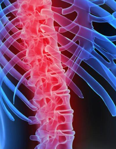 Omurilik tümörü nedir, belirtileri nelerdir?