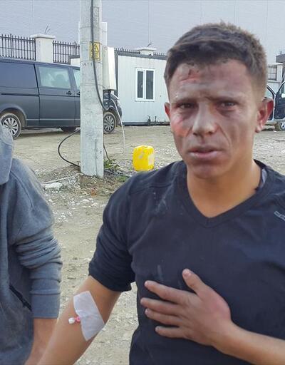 Ateşe tiner döktüler: 7 işçi yaralı