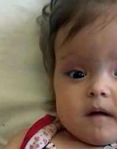 1 buçuk yaşında böbrek yetmezliğinden hayatını kaybetti