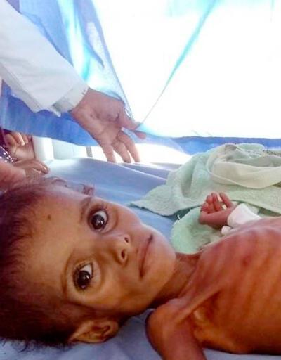 BM korkunç raporu açıkladı: Her 1 dakikada 12 çocuk can veriyor