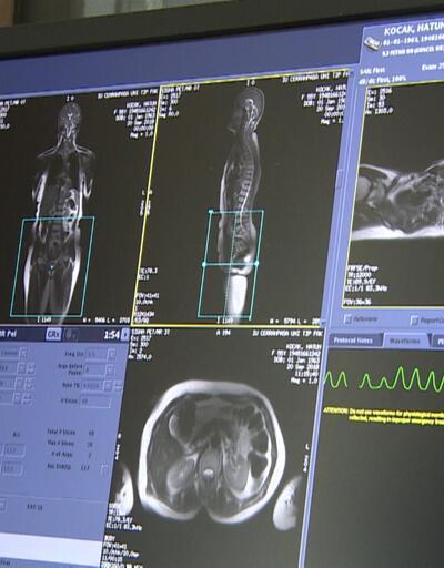 Kanserde akıllı molekül: Tümörler 4,5 yıl durdurulabiliyor