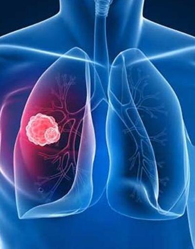 Kadınlarda akciğer kanseri oranı yükseldi