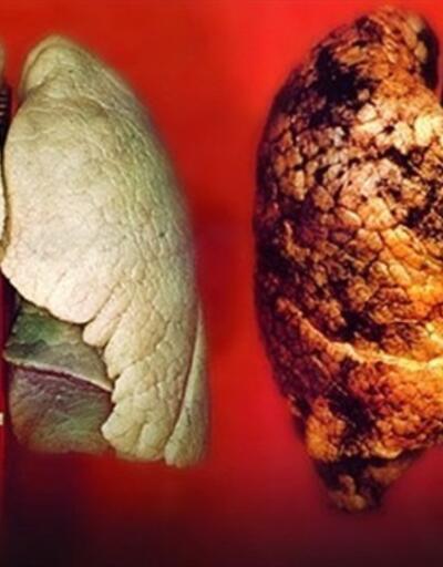 Sigara içiyorsanız... Kanser riski 36 kat artıyor
