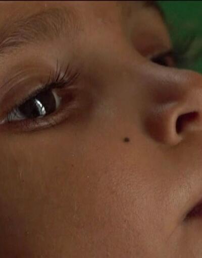 """""""85 bin çocuk açlıktan ölmüş olabilir"""""""