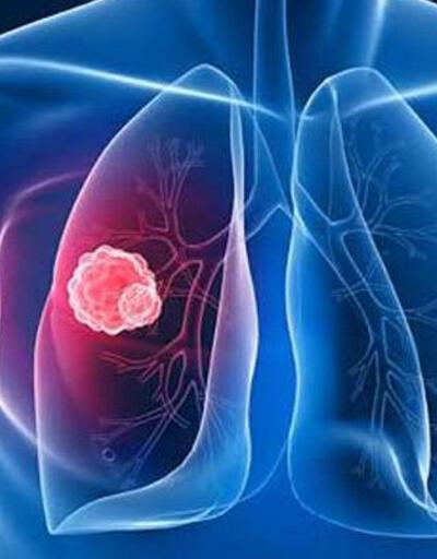 Erkeklerde en sık akciğer kanseri görülüyor