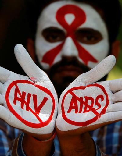 AIDS hakkında merak edilenler