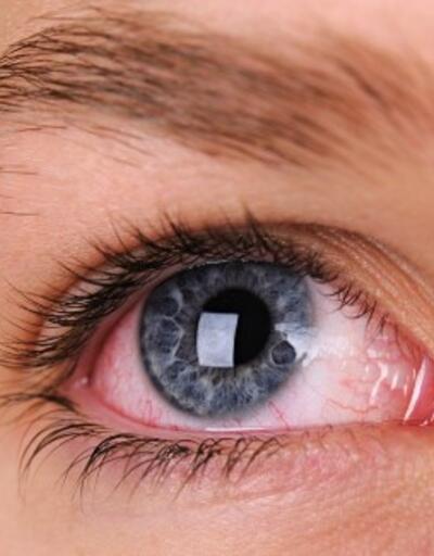 Göz tansiyonu nedir? Göz tansiyonu belirtileri nelerdir?
