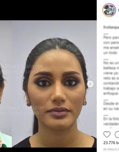 Venezuela güzeli şaşırttı! Yalanı ortaya çıktı