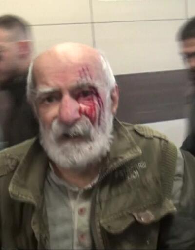 Ünlü oyuncu Taksim'de yürüyen merdivenden düşerek yaralandı