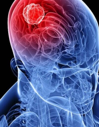 Beyin tümörü ile ilgili korkutan açıklama