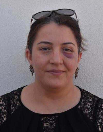 Yaralıya müdahale eden hemşire ve eşine sopalı saldırı