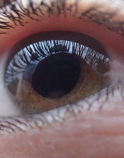 Yaz aylarında göz sağlığını korumanın yolları