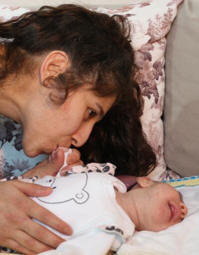 Doktorların 'hemen ölür' dedikleri 2 kafalı doğan bebekleri için çare arıyorlar