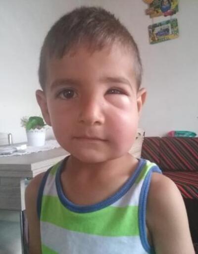 Arıların saldırdığı 2 çocuk hastaneye kaldırıldı