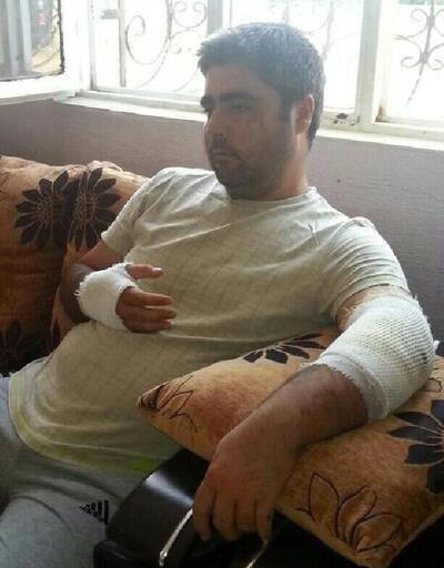 Baba ve 2 oğlu, yaban domuzlarının saldırısında yaralandı
