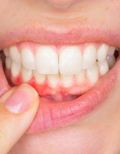 Diş eti çekilmesinin nedenleri