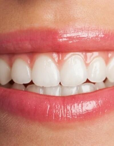 Dişlerde oluşan estetik problemlere dikkat